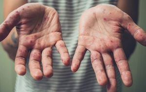 Гродненские врачи-инфекционисты рассказывают о случаях кори и как защититься от нее