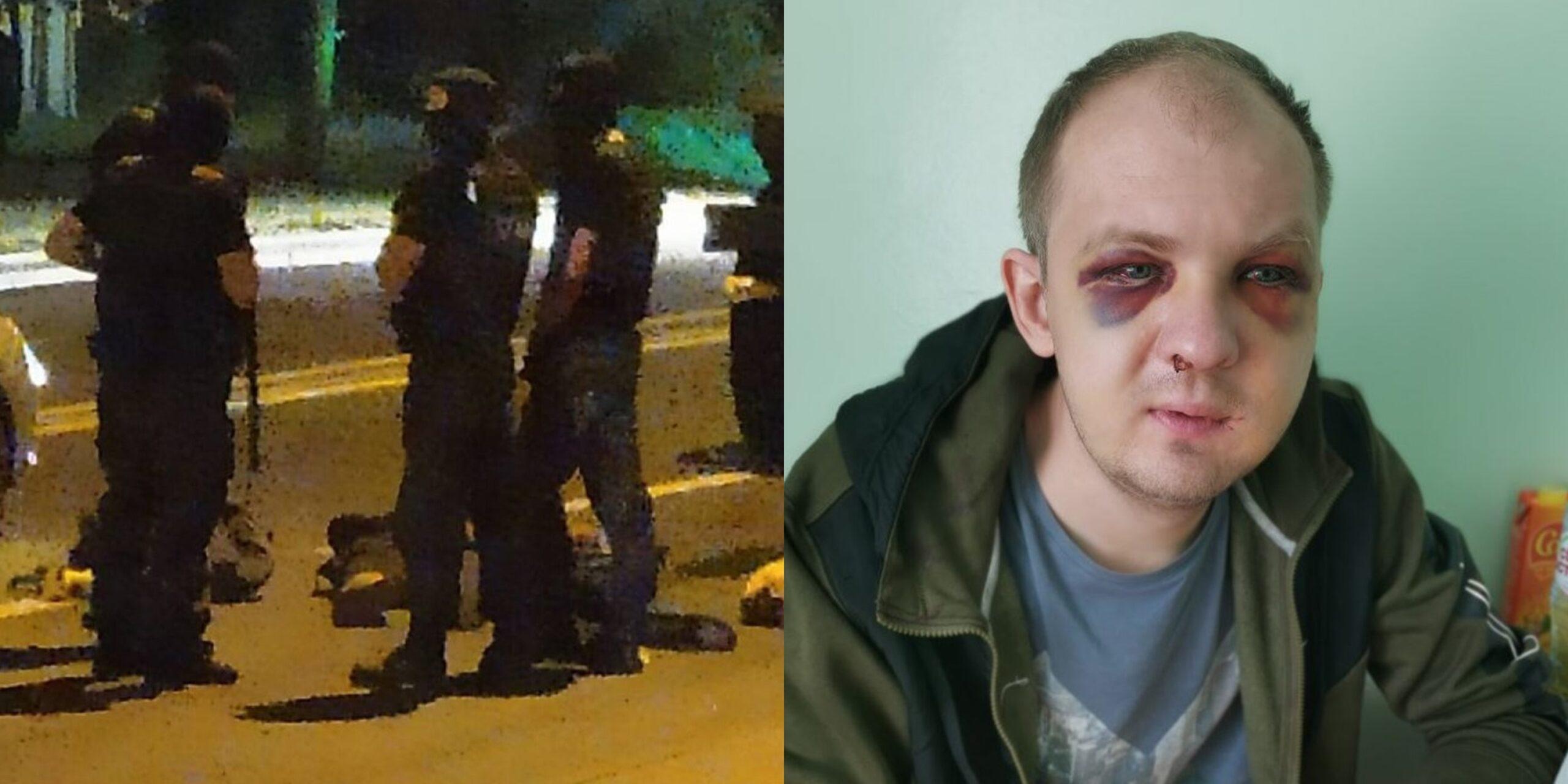 Алексей Лапа в момент задержания и в больнице